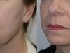 sagging-jowls-1  castelknock cosmetic clinic Dublin