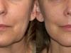 sagging-jowls-3  castelknock cosmetic clinic Dublin