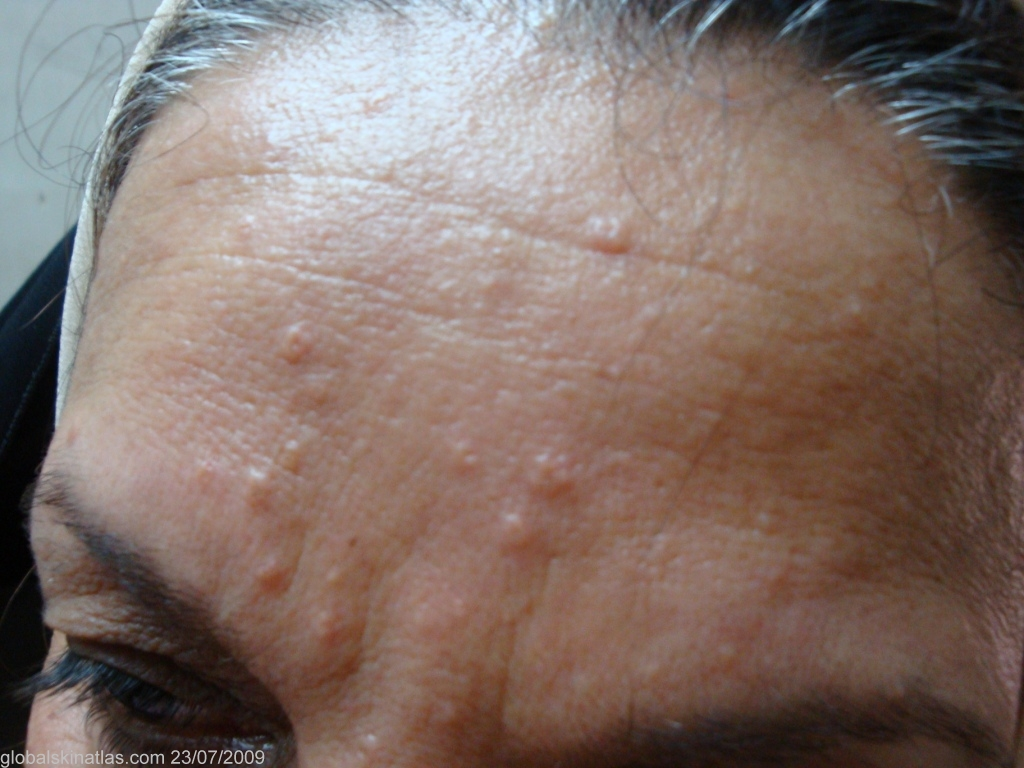 Adult acne cyst face bump