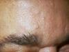 sebaceous-hyperplasia-3