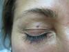 sebaceous-hyperplasia-4