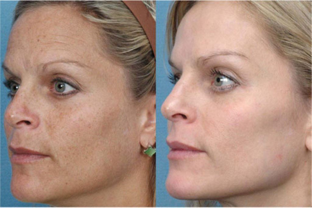 photofacial ruddy skin Sun Damage laser at castlkenock cosmetic clinic dublin 15