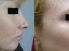 photo-rejuvination-6 freckles Sun Damage laser at castlkenock cosmetic clinic dublin 15
