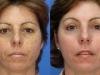 photo-rejuvination-7 freckles Sun Damage laser at castlkenock cosmetic clinic dublin 15