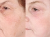 photo-rejuvination-8 Sun Damage laser at castlkenock cosmetic clinic dublin 15