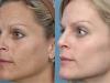 photofacial ruddy skin Sun Damage laser at castlkenock cosmetic clinic dublin 15