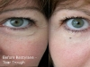 undereye-bags tear trough hollow at cosmetic clinic dublin