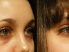 undereye-bags dark circle cosmetic clinic dublin