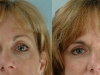 undereye-bags tear trough cosmetic clinic Diblin