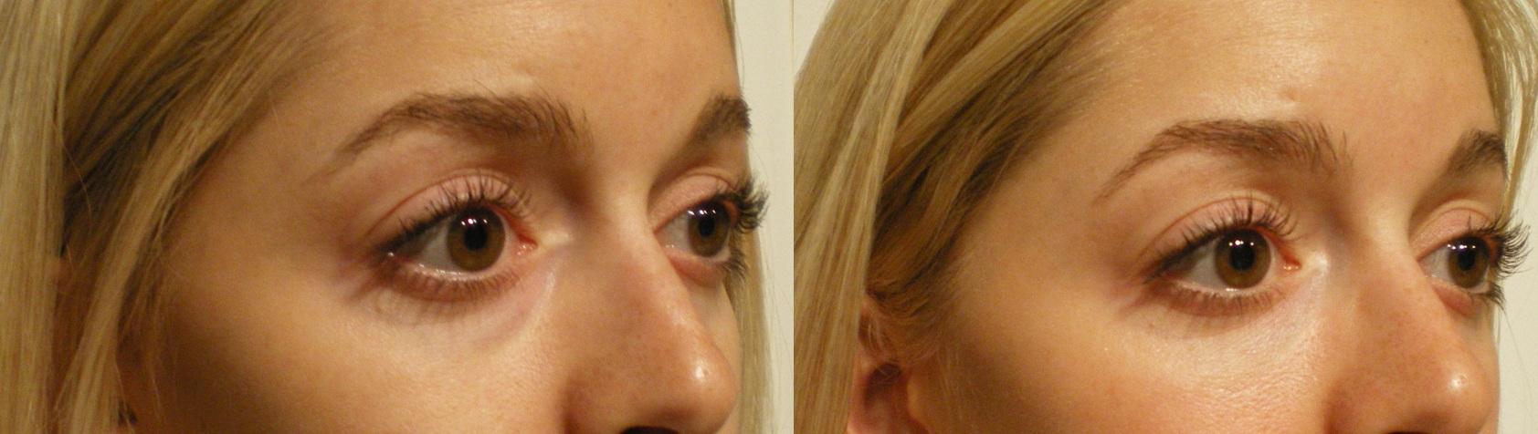 undereye-bags gaunt fix cosmetic clinic dublin