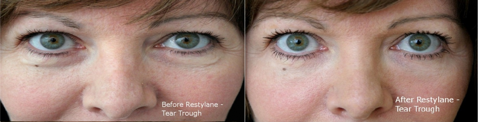 undereye-bags tear trough hollow at cosmetic clinic dublin