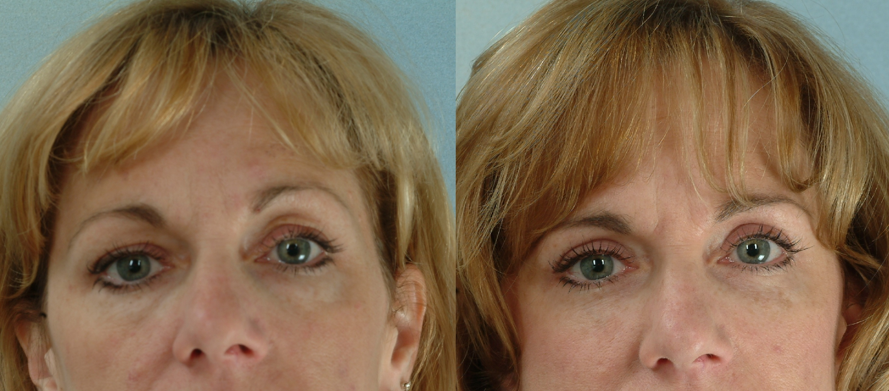 undereye-bags tear trough cosmetic clinic Diblin