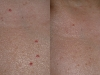 cherry-angiomas laser Castleknock cosmetic clinic Dublin 15