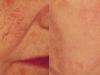 telangiectasia thread veins Castleknock cosmetic clinic Dublin 15