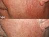 Facial vessels Vascular Lesions thread veins laser cosmetic clinic Dublin