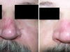 Nose Veins large Vascular Lesions thread veins laser cosmetic clinic Dublin