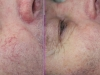 Facial Veins Vascular Lesions thread veins laser cosmetic clinic Dublin