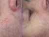 Facial Veins Vascular Lesions thread veins laser cosmetic clinic Dublin