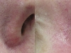 Veins on the nose Vascular Lesions thread veins laser cosmetic clinic Dublin