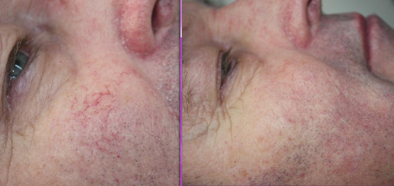 Spider veins on patients face