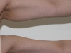 VASER Lipo arms liposuction clinic dublin