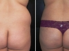 VASER Lipo to Love Handles Liposuction clinic dublin