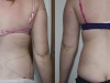 VASER Lipo Love Handles and Arms Liposuction clinic dublin