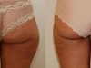 Vaser Saddle Bags - Liposuction clinic dublin 15
