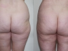 Vaser for saddle Bags - Liposuction clinic dublin 15