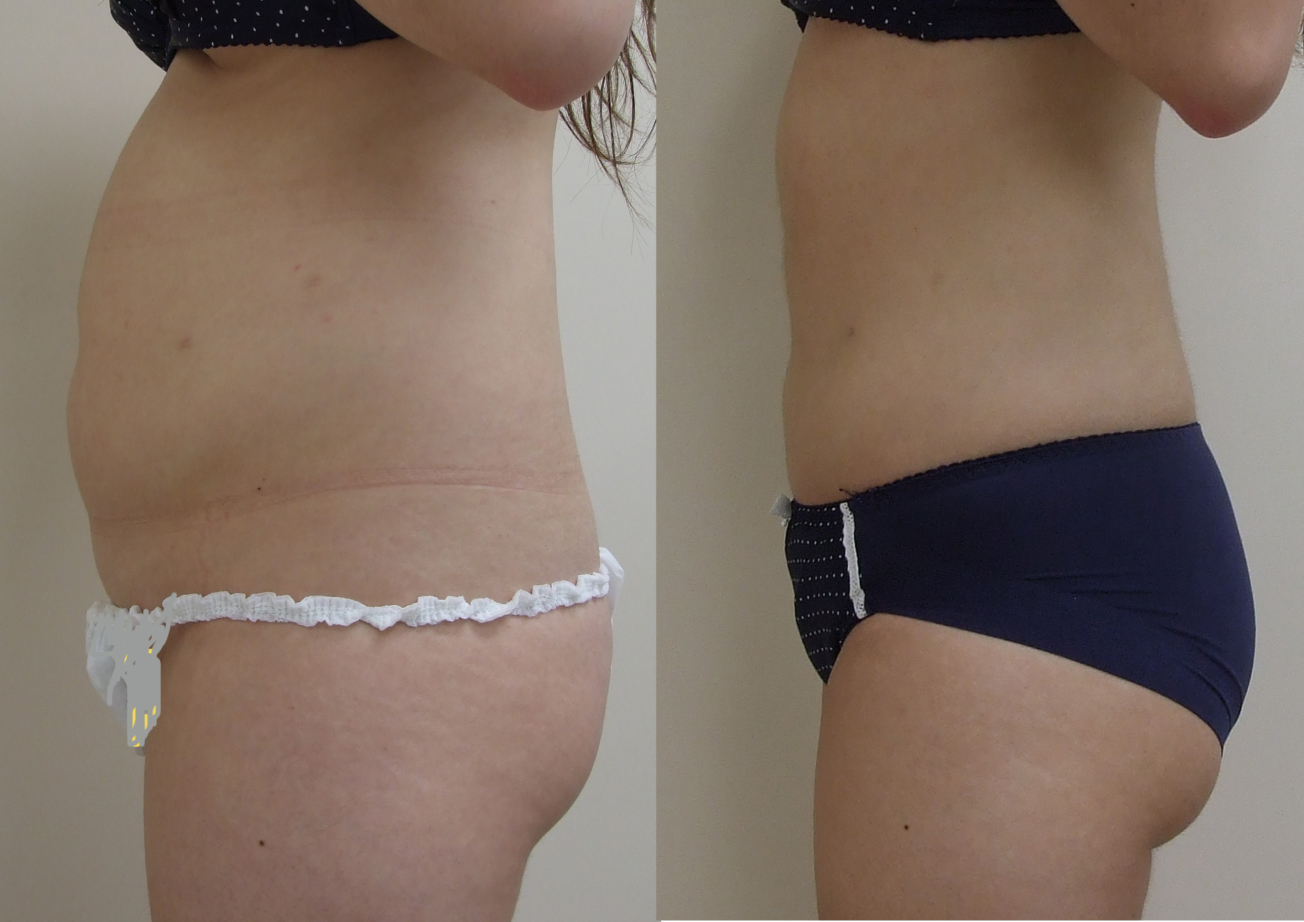 VASER Lipo to the Abdomen liposuction clinic dublin