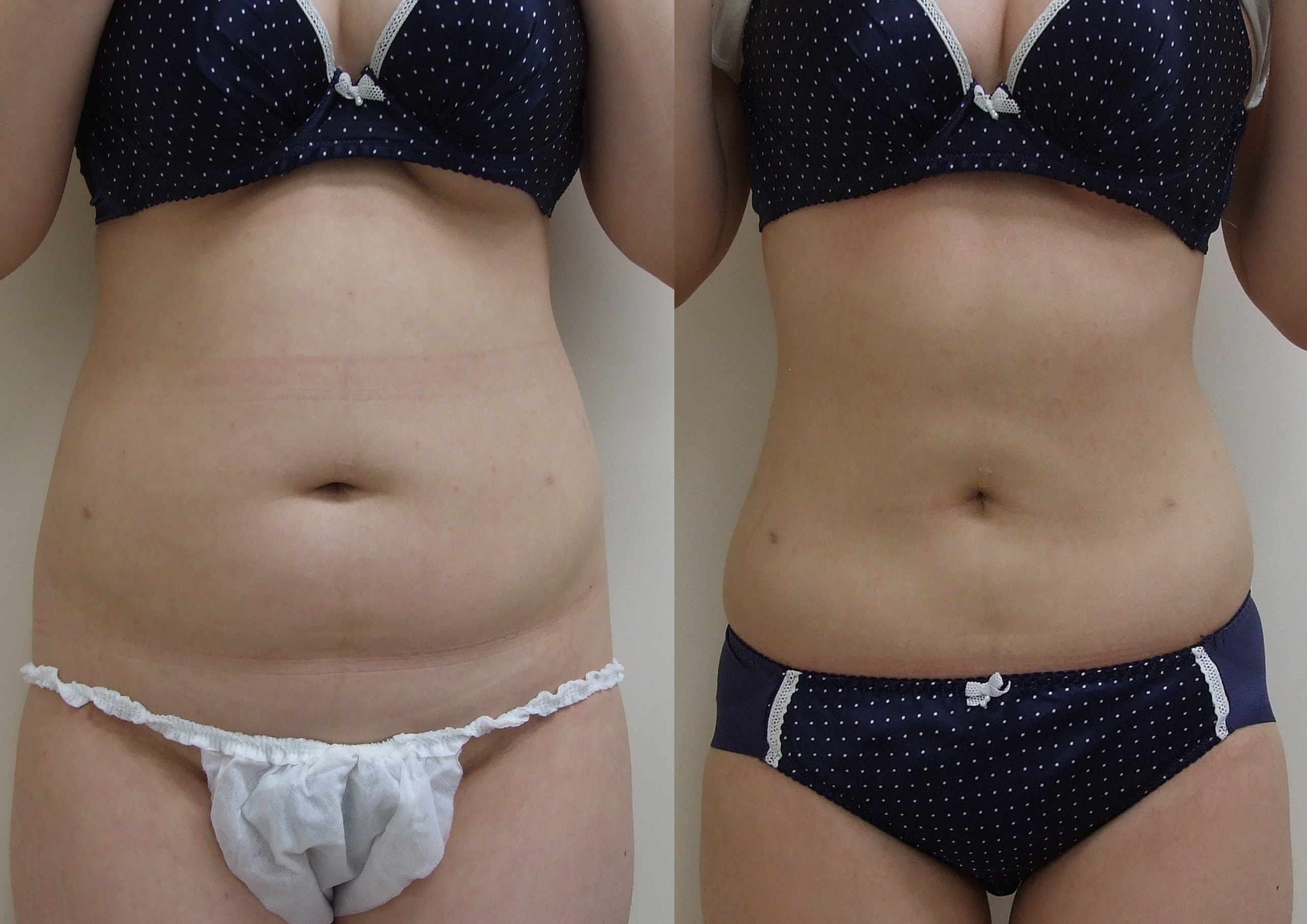 VASER Lipo to the tummy liposuction clinic dublin