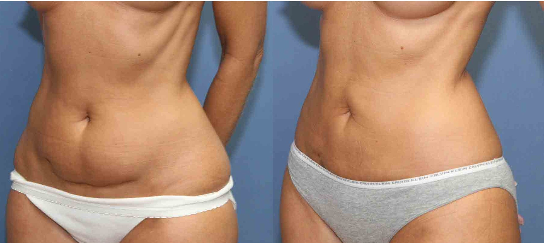 VASER Lipo to sagging tummy liposuction dublin