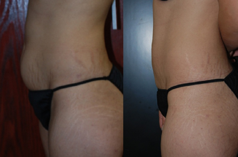VASER Lipo to the flat tummy liposuction clinic dublin