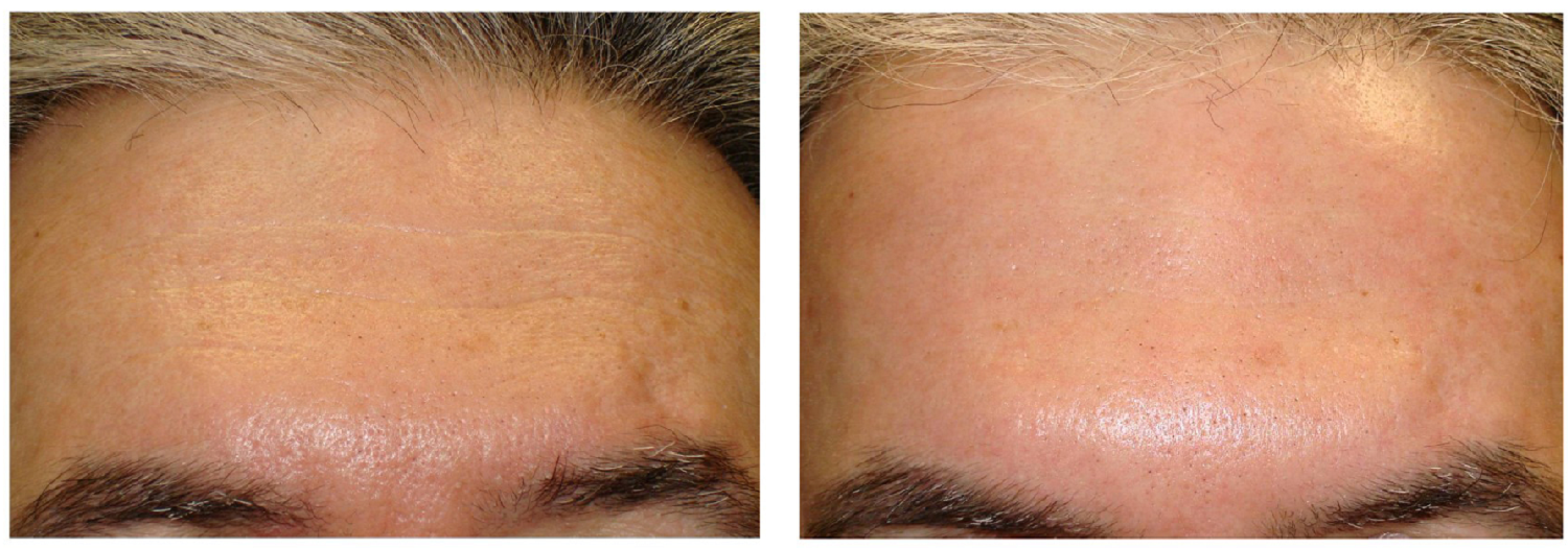 botox worry lines cosmetic clinic dublin 15