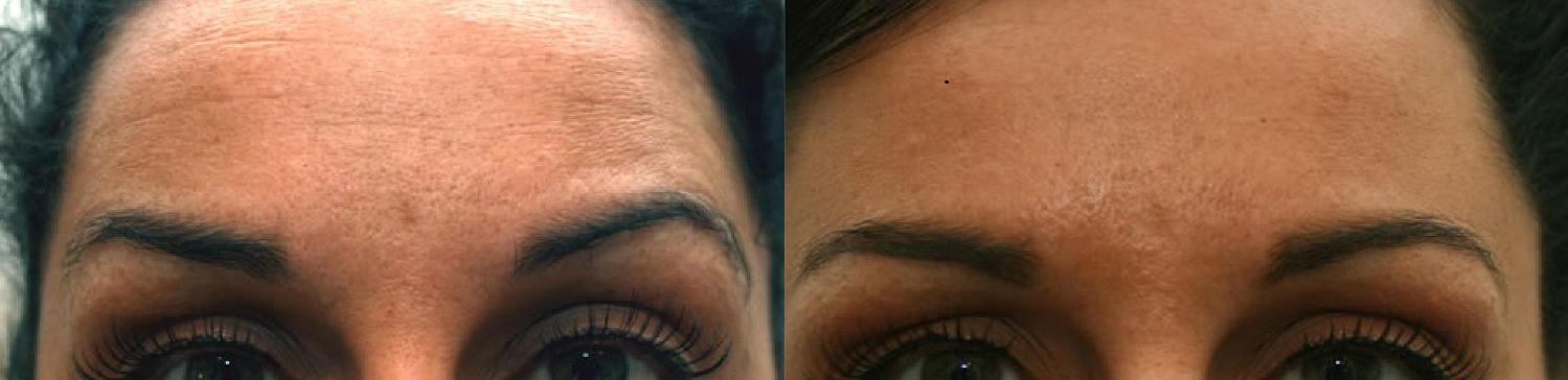 botox worry lines clinic dublin 15