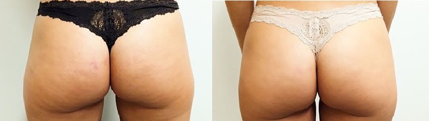 Sculptra butt lift buttock injections at Castleknock Cosmetic Clinic Dublin