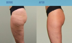orange peel and cottage cheese cellulite treatment Castleknock cosmetic clinic Dublin