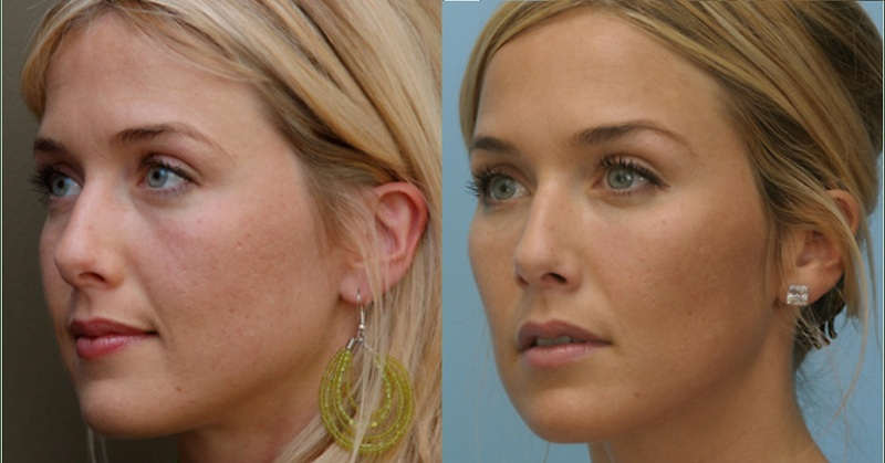 Cheek augmentation with dermal fillers at Castleknock cosmetic clinic Dublin