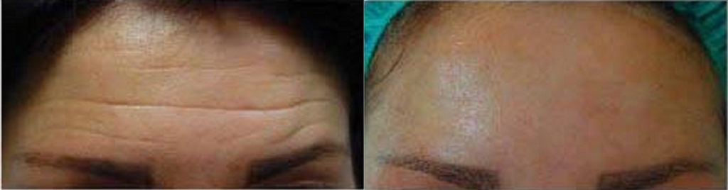 Smooth forehead with botox anti wrinkle injections muscle relaxant by qualified doctor cosmetic clinic