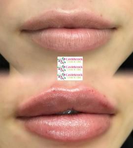 keyholepout-lips