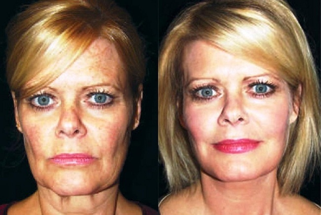 What To Expect As Your Face Ages Castleknock Cosmetic