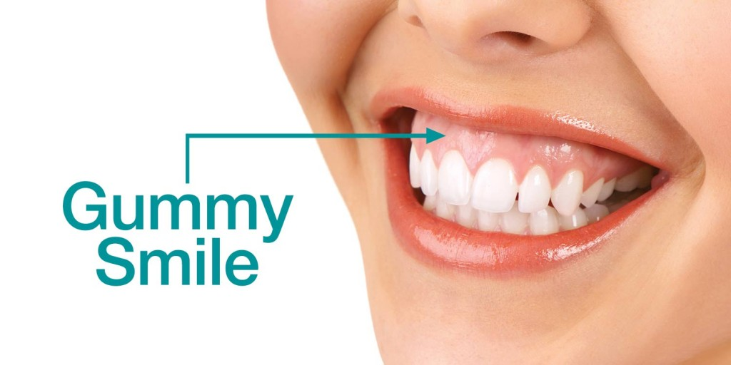 Gummy smile treatment with botox and fillers thin lips