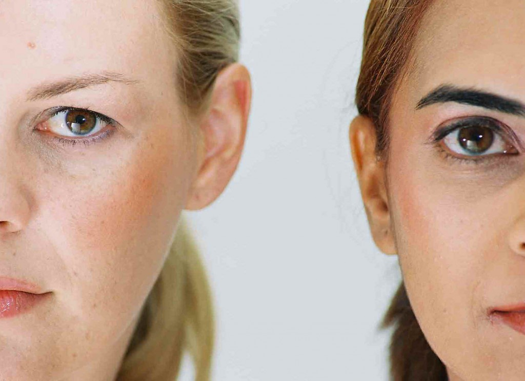 Nasolabial lines injection with dermal fillers