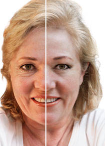 Botox and fillers at castleknock cosmetic clinic dublin
