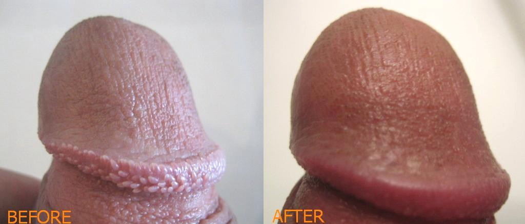 before and after CO2 laser treatment of pearly penile papules at Castleknock cosmetic clinic dublin