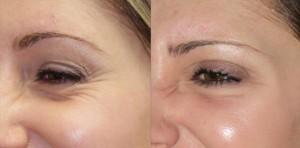 botox – Castleknock Cosmetic Clinic