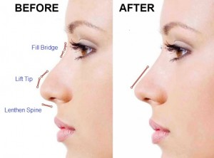 Non surgical nose reshaping rhinoplasty using dermal fillers a doctor blog Castleknock Cosmetic Clinic Dublin