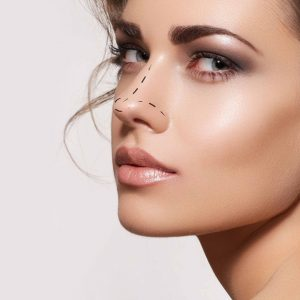 Non surgical nose rhinoplasty dermal filler treatment