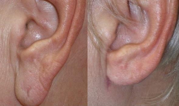 Enlarged earlobe reduction Elongated large ear lobe repair Dublin