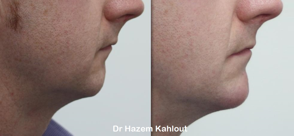 Chin augmentation with dermal fillers